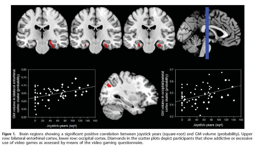 MRI로 측정한 뇌의 각 부위의 해부학적 크기를 살펴봅시다
